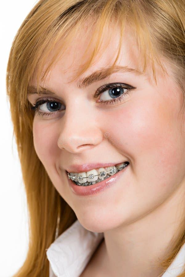 Mooie jonge vrouw met steunen op tanden stock foto