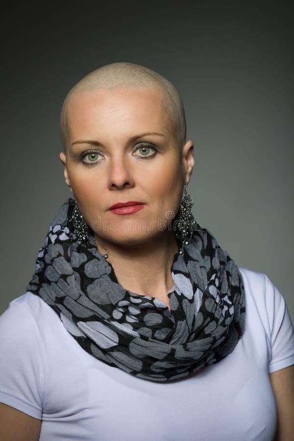 Mooie kankerpatiënt van de middenleeftijdsvrouw zonder haar stock afbeelding