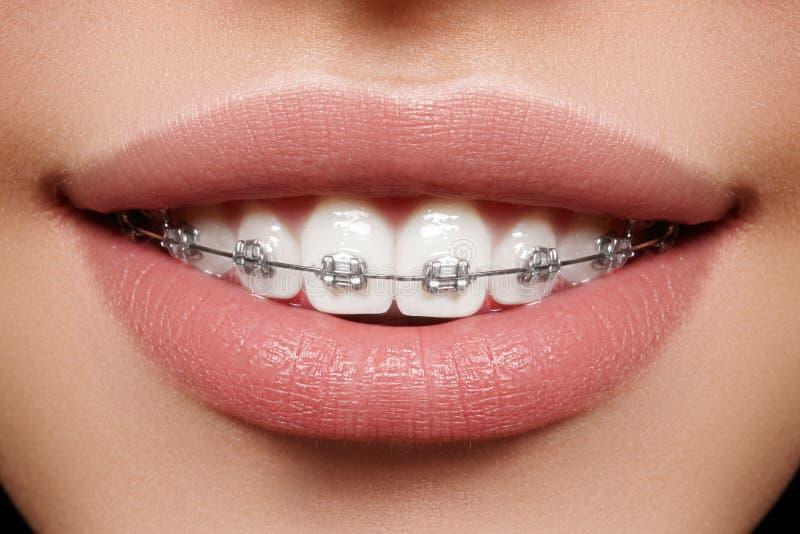 Mooie witte tanden met steunen Tandzorgfoto Vrouwenglimlach met ortodontic toebehoren Orthodontiebehandeling stock afbeeldingen