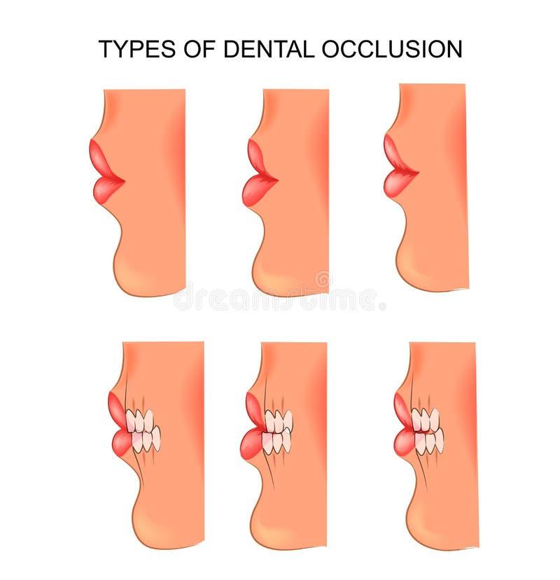 Mordida dental dentistry ilustração stock