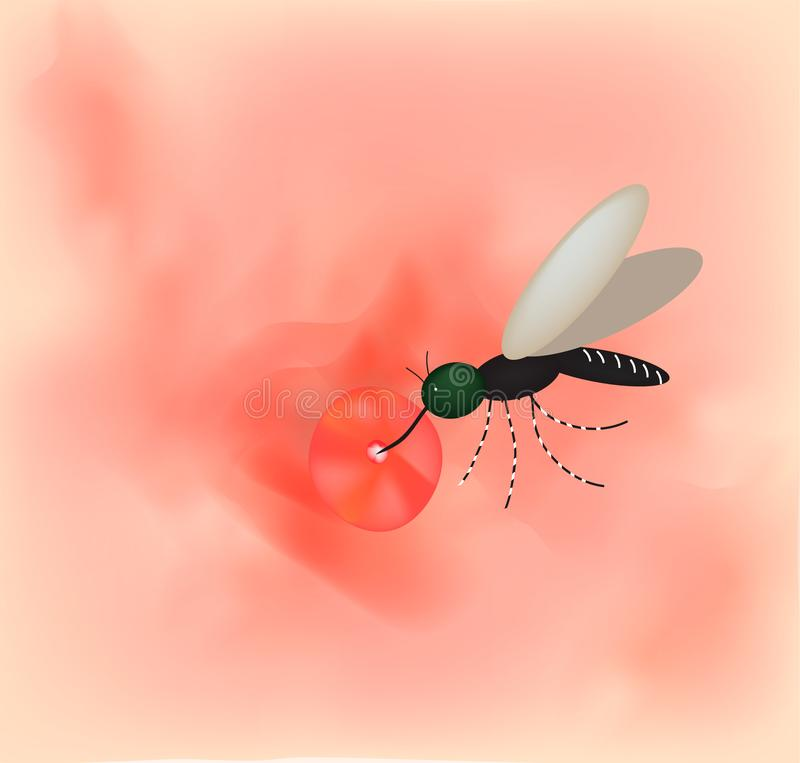 Mosquito bite on the skin. World mosquito day. Vector illustration on isolated background. Mosquito bite on the skin. World mosquito day. Infographics. Vector stock illustration