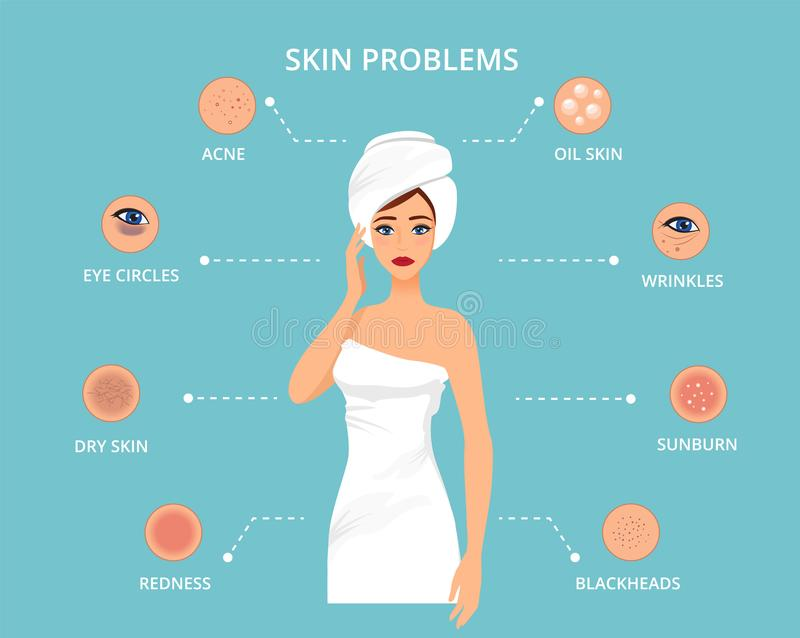 Skin conditions and problems. Cosmetology skin care. The most common female facial skin problems: acne, wrinkles, dry skin, dark circles, blackheads and oil skin royalty free illustration