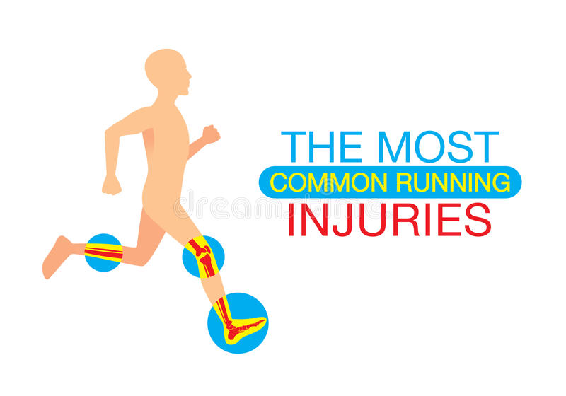 The most common running injuries vector illustration
