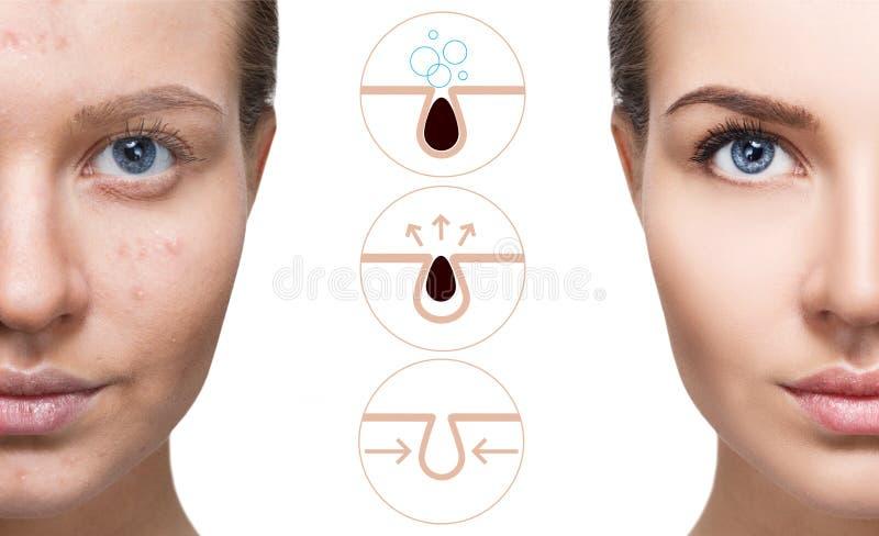 Mostra graficamente como poluir e limpar os poros na cara foto de stock royalty free