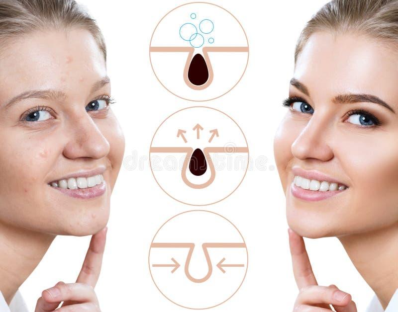 Mostra graficamente como poluir e limpar os poros na cara fotografia de stock royalty free