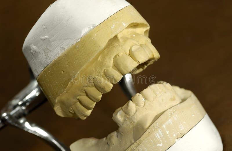 Moulage dentaire images libres de droits
