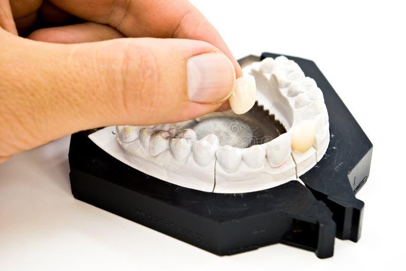 Moulage dentaire de plâtre images libres de droits