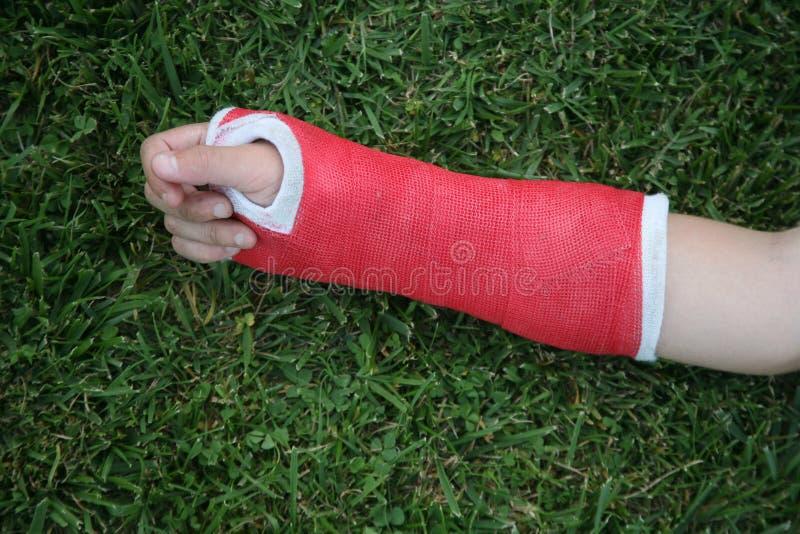 Moulage rouge de bras et de main de poignet image libre de droits