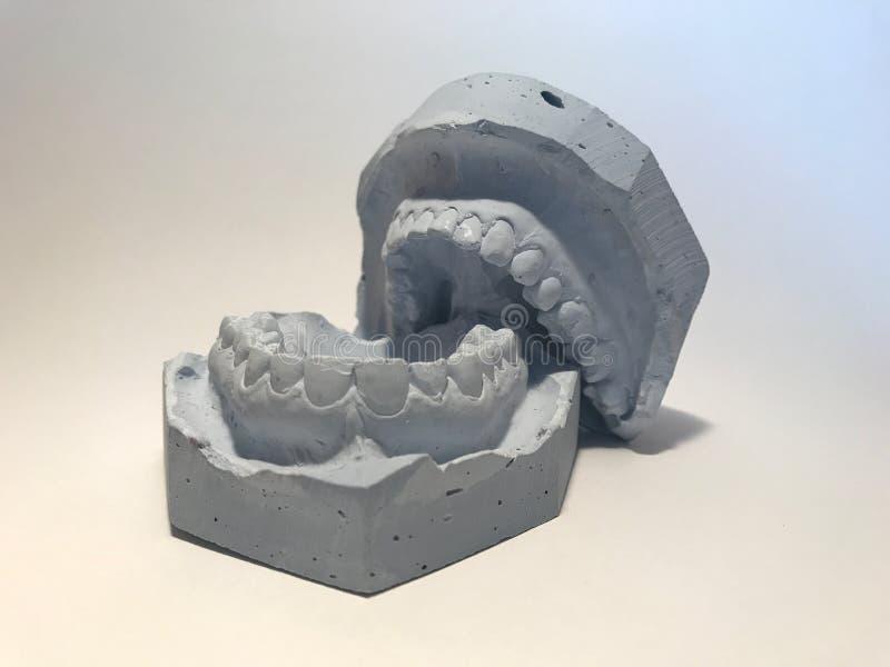 Moule dentaire de modèle de gypse des dents en plâtre avec des lunettes de soleil et des écouteurs photographie stock