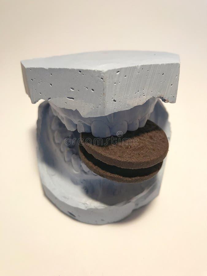 Moule dentaire de modèle de gypse des dents en plâtre avec des lunettes de soleil et des écouteurs photo stock