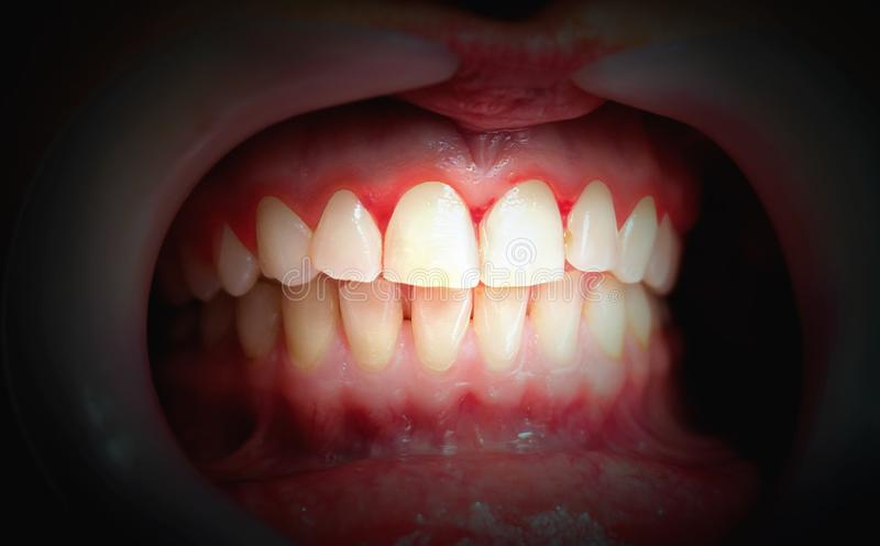 Mouth with bleeding gums on a dark background royalty free stock image
