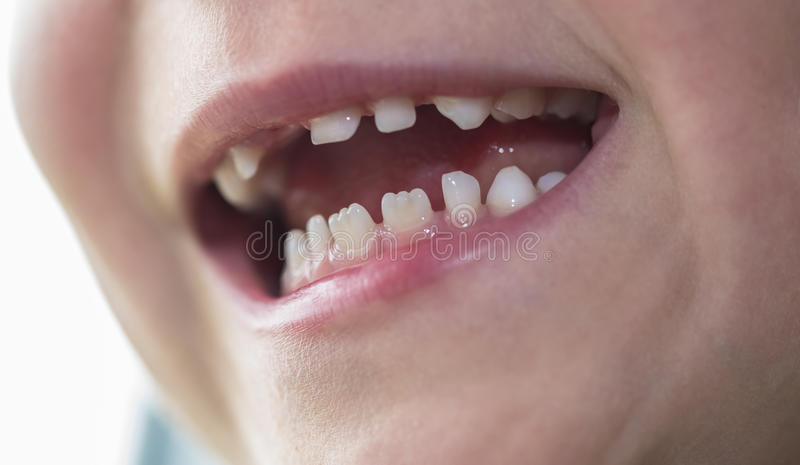 Mouth of a boy with missing tooth. Mouth of six year old boy boy with missing front tooth royalty free stock photography