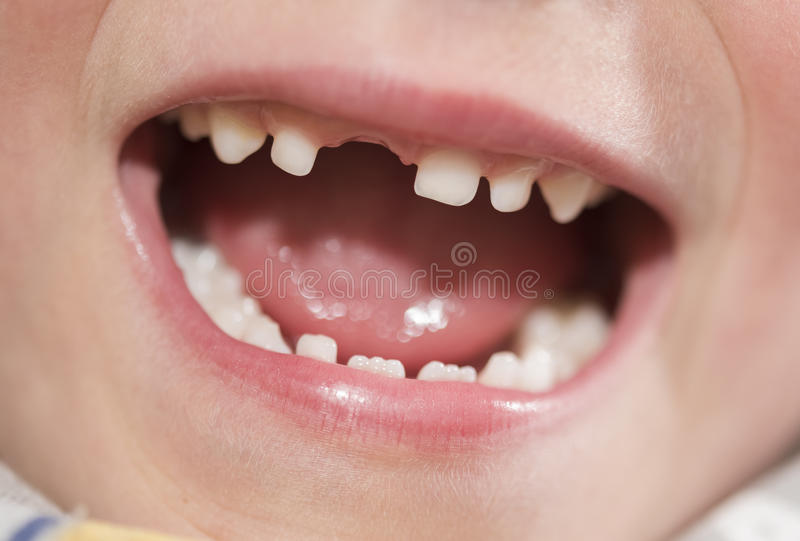 Mouth of a boy with missing tooth. Mouth of six year old boy boy with missing front tooth stock image