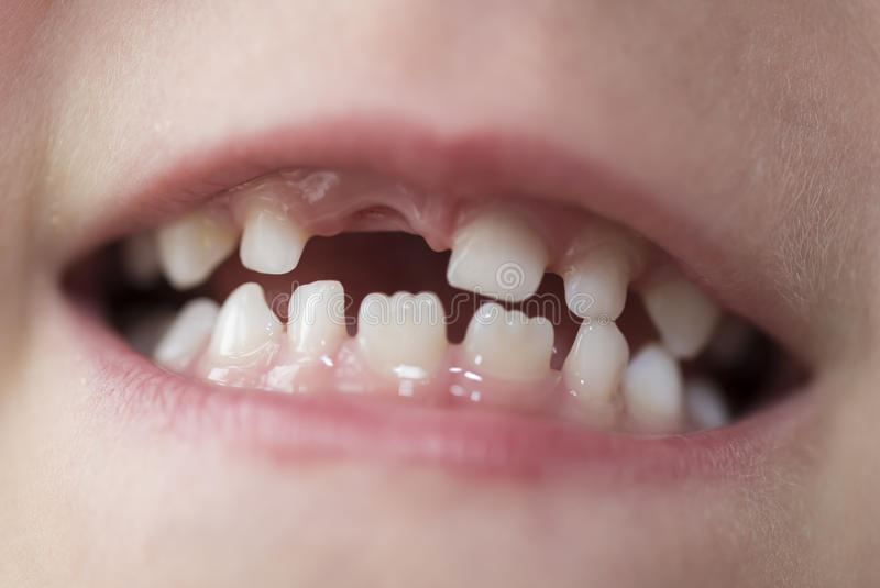 Mouth of a boy with missing tooth. Mouth of six year old boy boy with missing front tooth stock photos