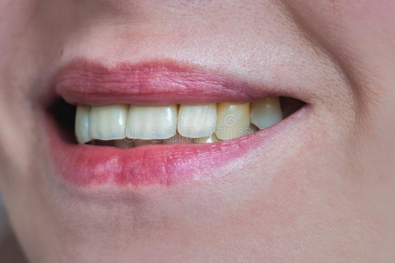 Mouth with four prosthetic upper teeth. Close up stock images