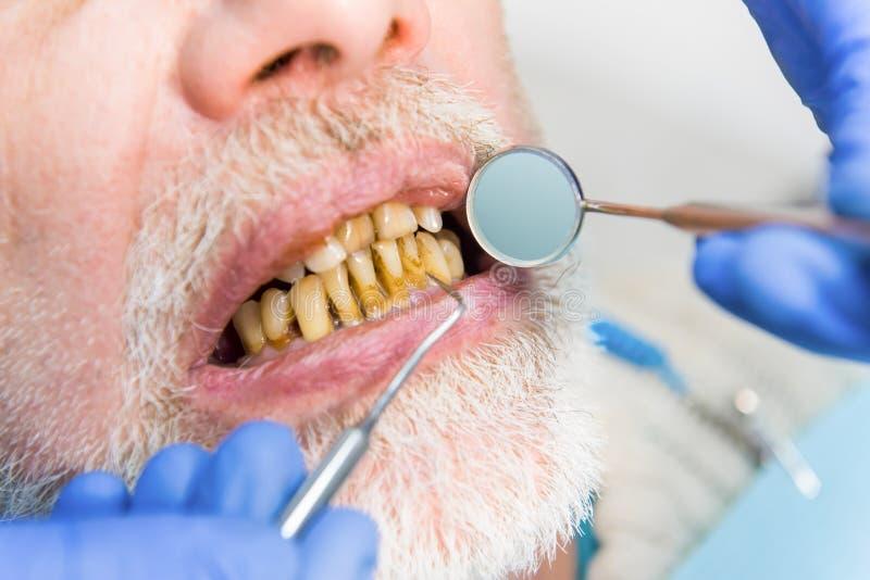 Mouth mirror and bad teeth. Close up of dental examination royalty free stock image