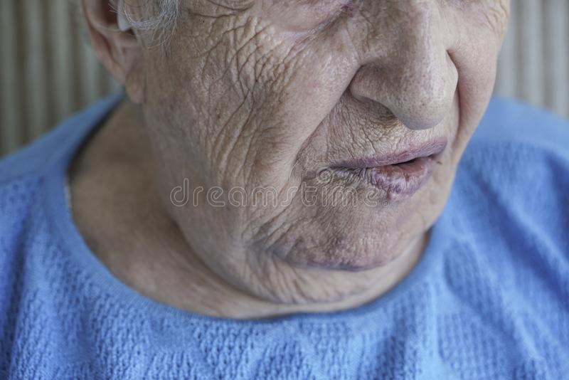 Mouth of a senior person who has facial palsy. Closeup mouth of a senior person who has facial palsy stock images