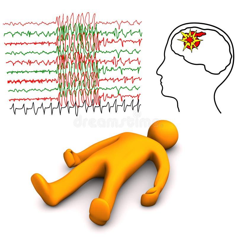 Movimiento apoplético y epiléptico ilustración del vector