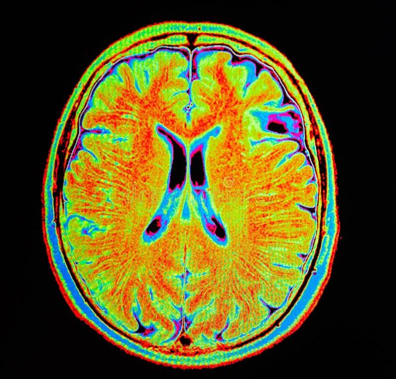 Movimiento del cerebro de Mri fotografía de archivo