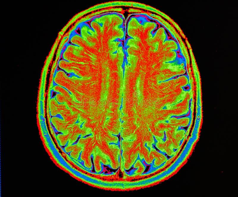 Movimiento del cerebro de Mri fotos de archivo libres de regalías