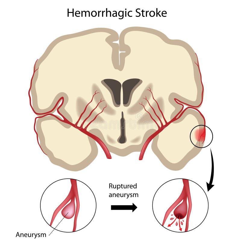 Movimiento hemorrágico del cerebro ilustración del vector