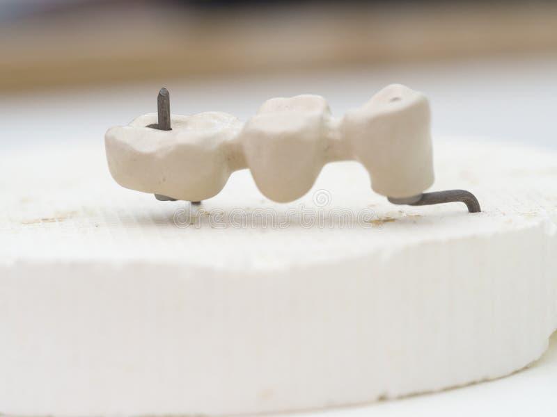 Mplantstanden in het technische Ondoorzichtige porselein worden gemaakt tanddie Oxidi stock afbeelding