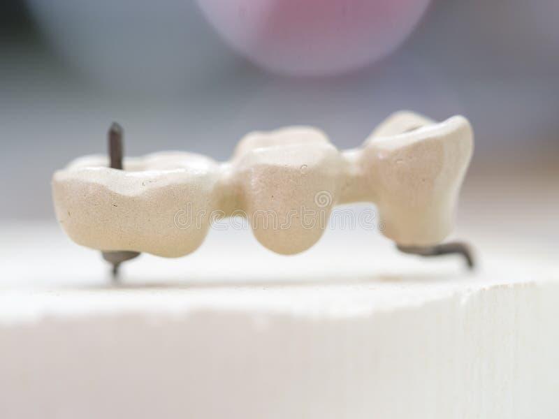 Mplantstanden in het technische Ondoorzichtige porselein worden gemaakt tanddie Oxidi stock fotografie