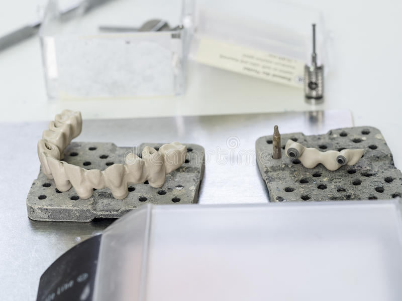 Mplantstanden in het technische Ondoorzichtige porselein worden gemaakt tanddie Oxidi royalty-vrije stock afbeeldingen