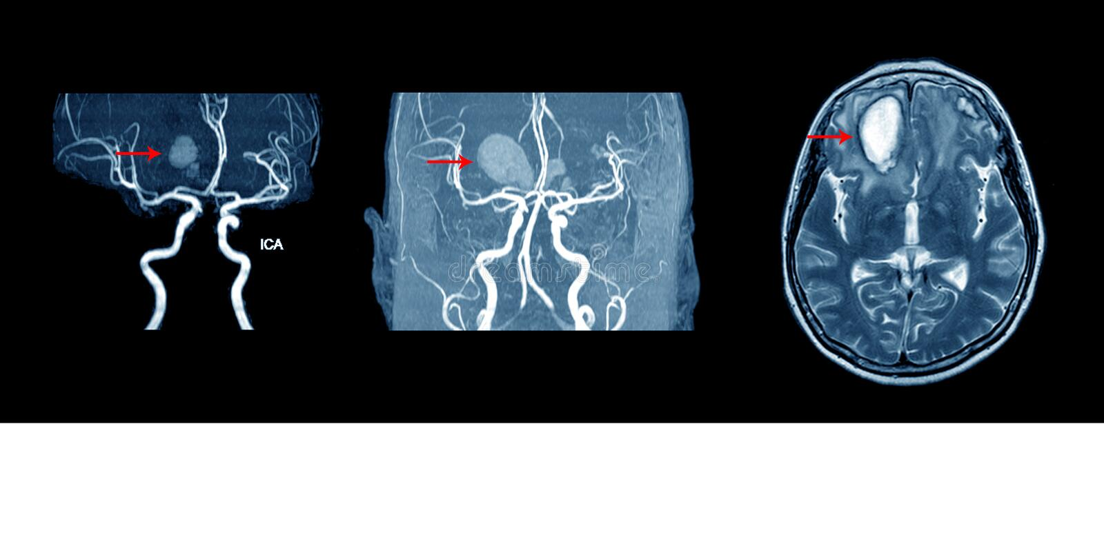 MRA AND MRV OF BRAIN. MRI, MRA AND MRV OF BRAIN:Finding multiple acute intracranial hemorrhage at bilateral frontal lobes royalty free stock image