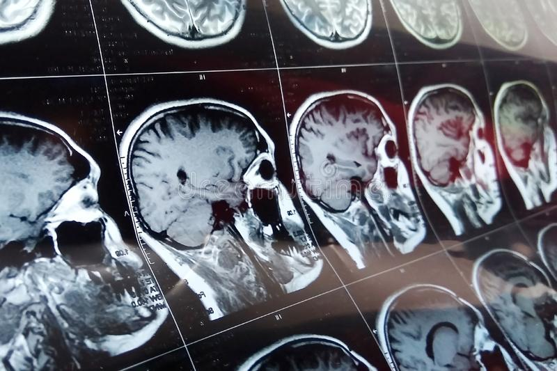 MRI在黑暗的背景蓝色的头扫描 X-射线医学和疗程概念 向量例证