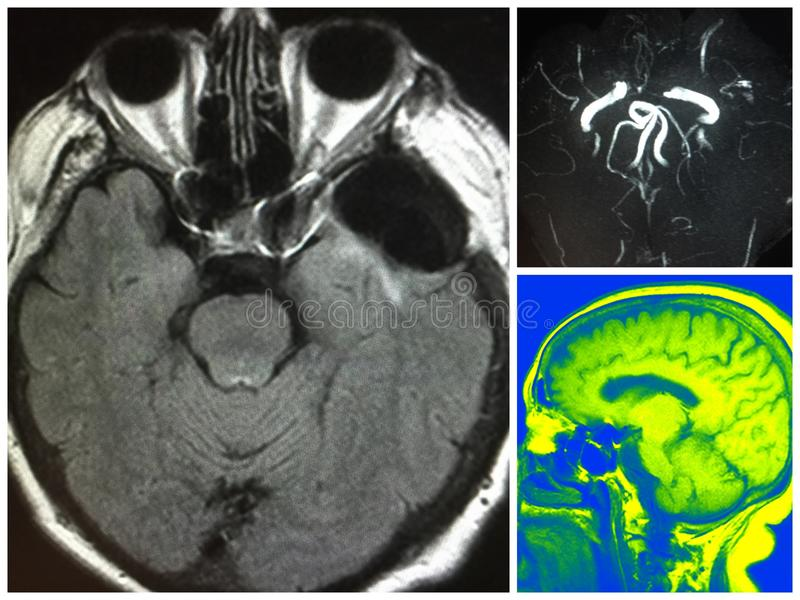 Mri剪报人工制品双边大脑动脉瘤 库存图片