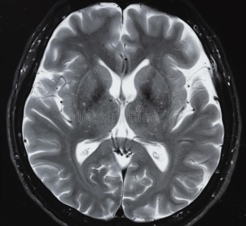 MRI нормальной анатомии человеческого мозга стоковое изображение rf