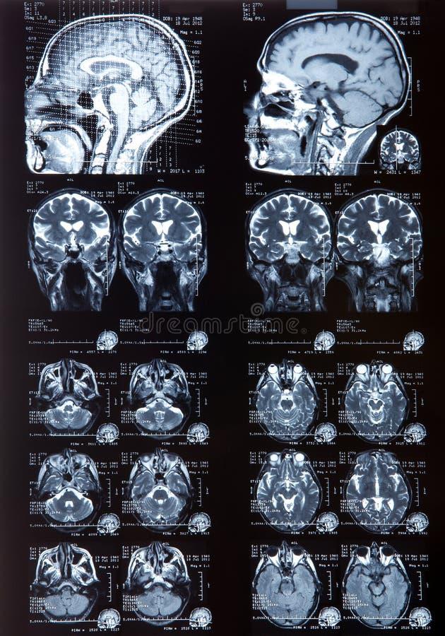 MRI obraz royalty free