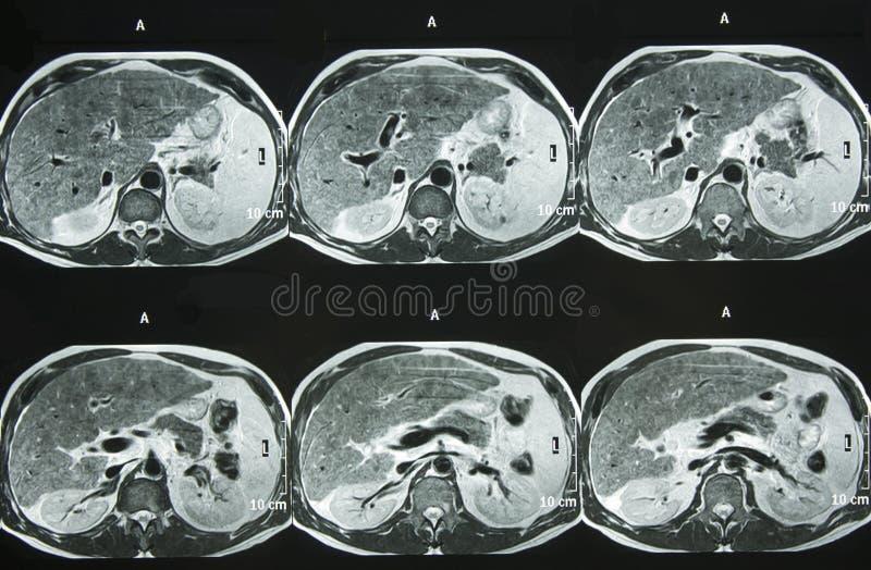 Download MRI of Abdomen stock photo. Image of bones, health, headache - 9305806