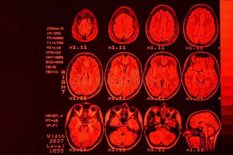 MRI-aftasten of magnetische resonantiebeeld van hoofd en hersenenaftasten Het resultaat is een MRI van de hersenen met waarden en royalty-vrije stock afbeeldingen
