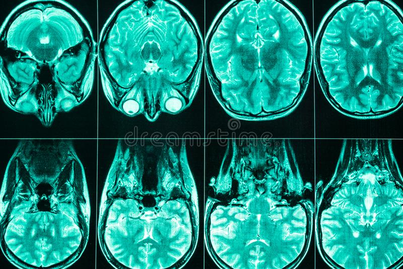 MRI-aftasten van het hoofd en de hersenen van een persoon stock fotografie