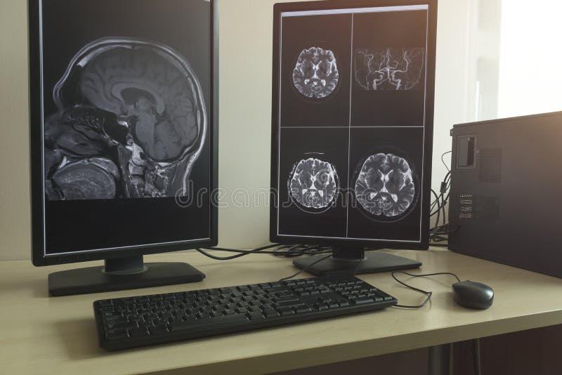 MRI av den mänskliga hjärnan i doktorskontor royaltyfri bild
