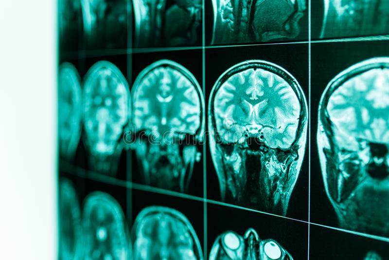 MRI av den mänskliga hjärnan och hjärnan i defocus arkivfoto