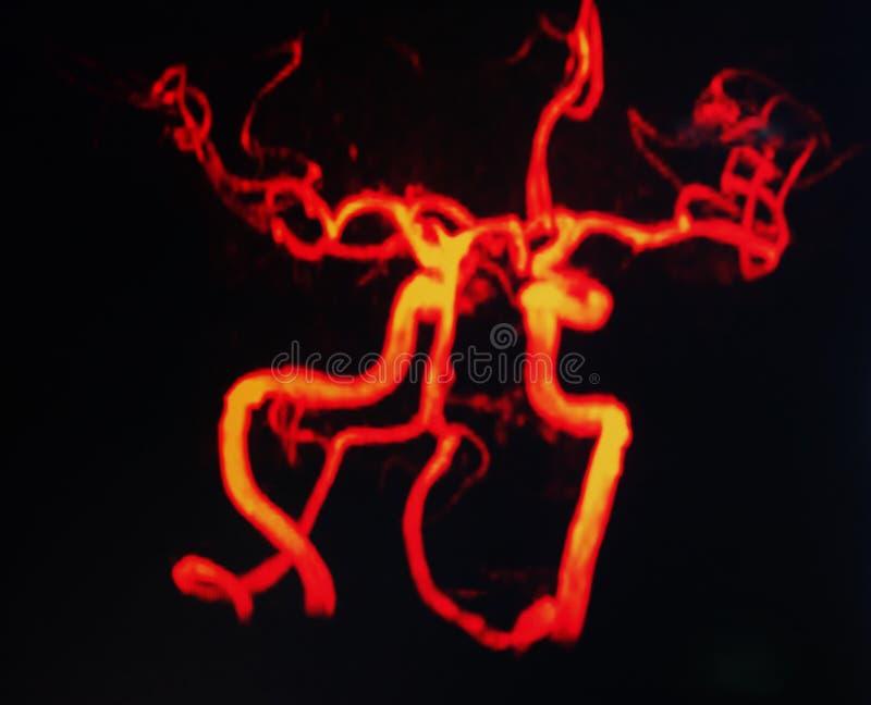 Mri av hals- och hjärnskyttlar arkivfoto