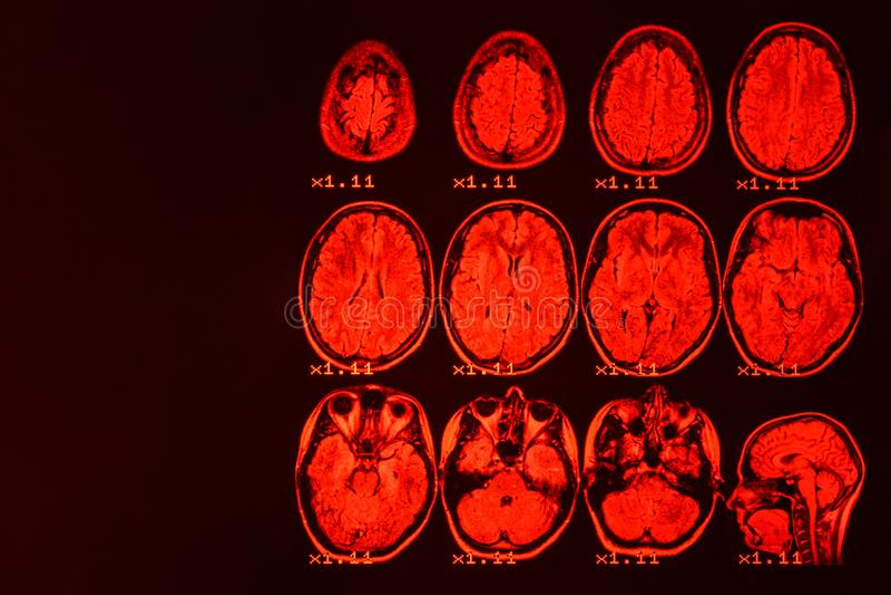 MRI av hj?rnan p? en svart bakgrund med det r?da panelljuset arkivfoton