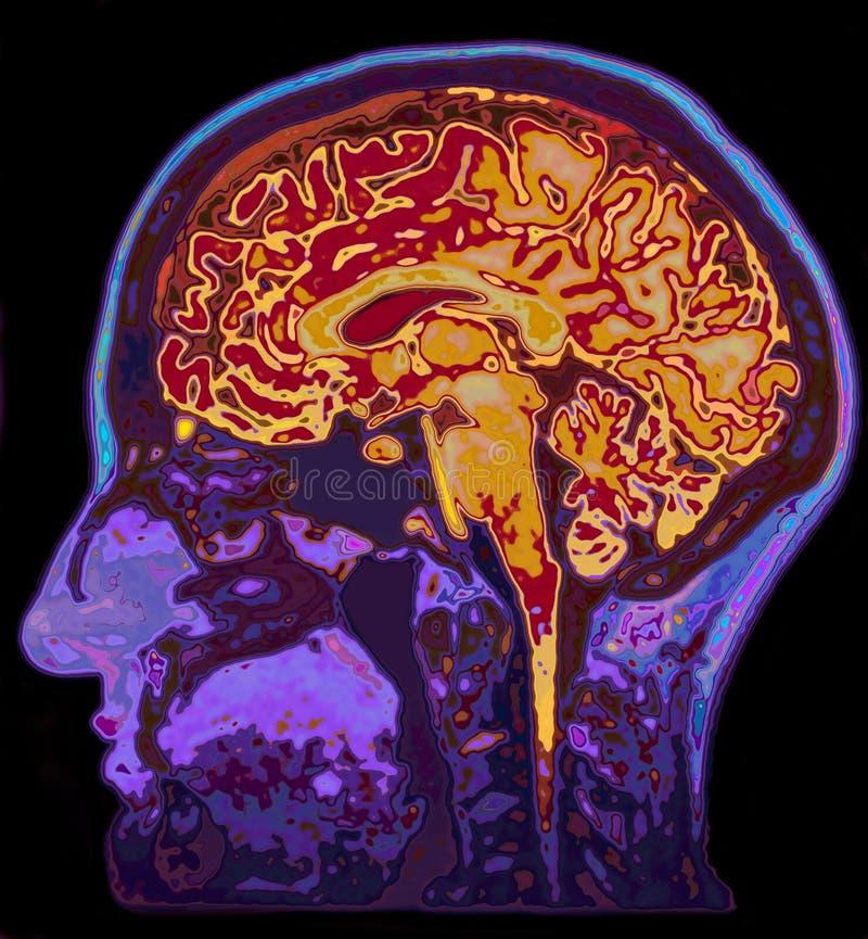 MRI-bild av den Head visninghjärnan royaltyfria foton