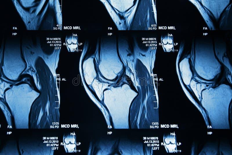 MRI-bild av knäet royaltyfria bilder