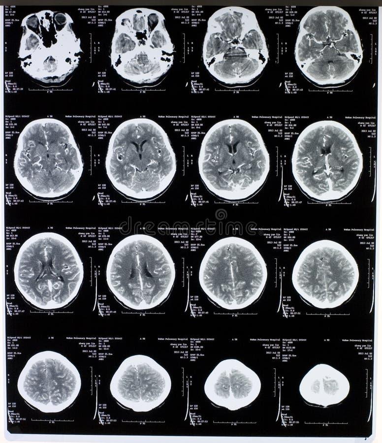 MRI-Bild Des Gehirns Stockbild