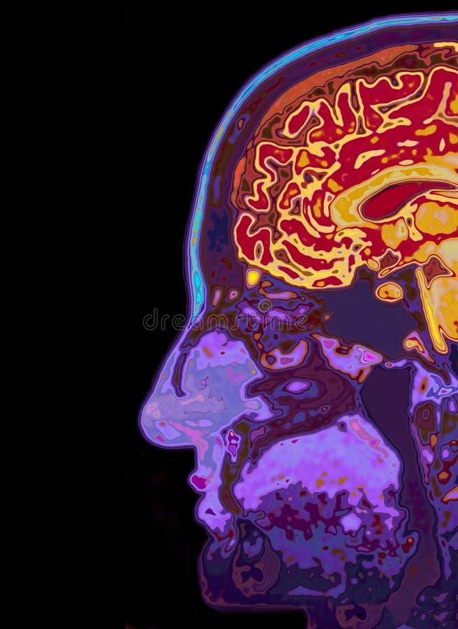 MRI-bildläsning av den Head visninghjärnan royaltyfri fotografi