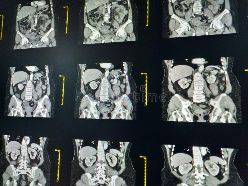MRI-bildläsning av den lumbosacral LS-ryggen, den coronal sikten, fallet av lumbal spondylosis och osteoporotic ryggrads- kompres royaltyfri fotografi