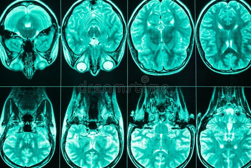 MRI-bildläsning av huvudet och hjärnan av en person arkivbild