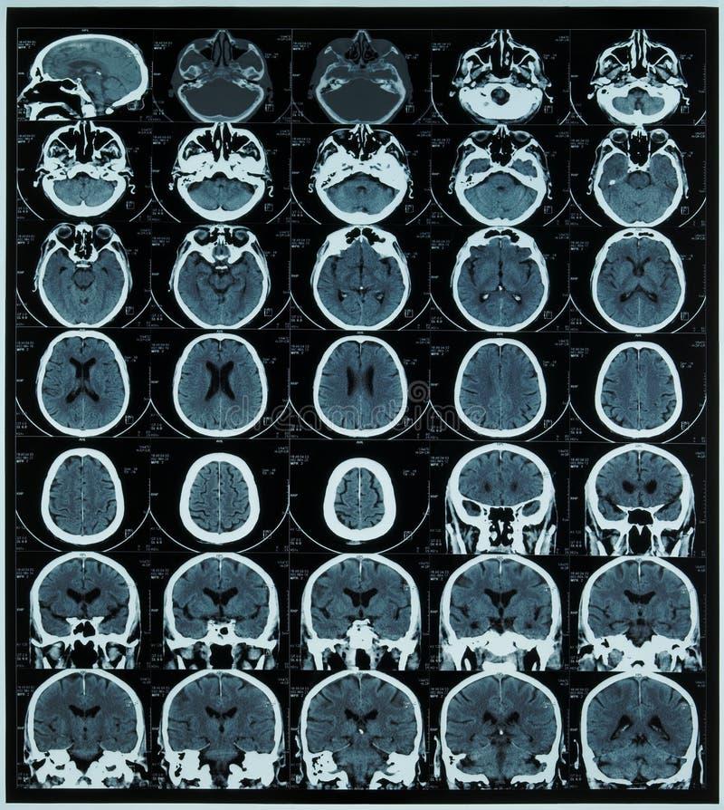 MRI of brain stock image