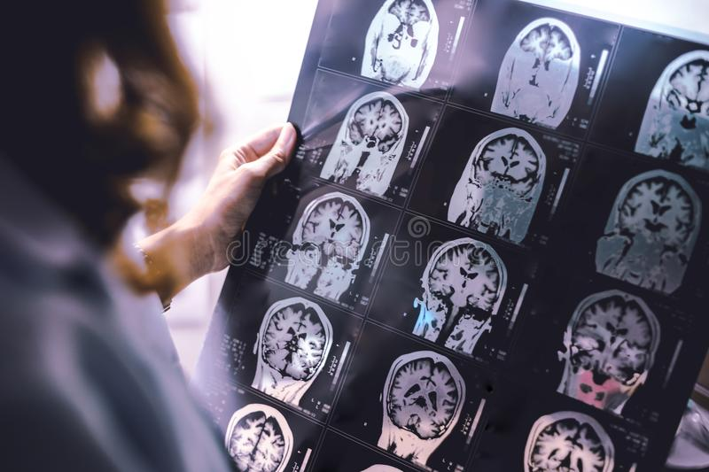 MRI brain Dementia royalty free stock photo