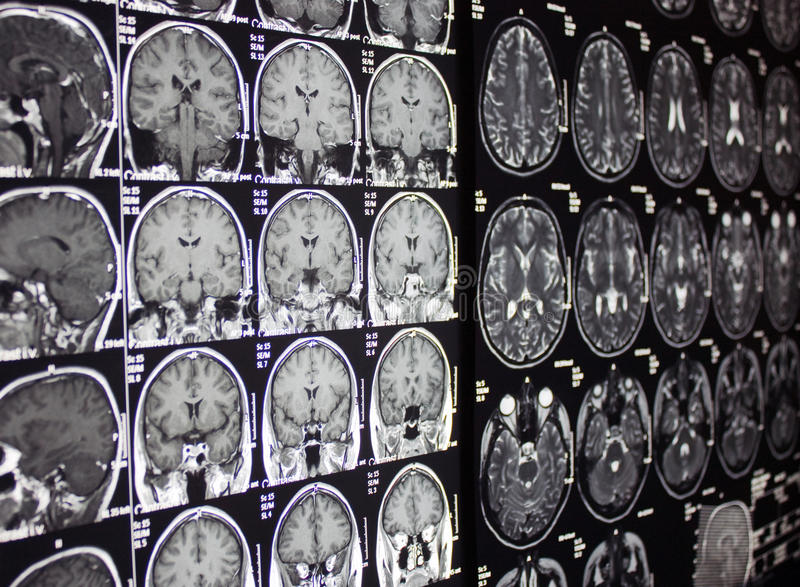 MRI of brain, MR. Magnetic Resonance of Brain, axial MRI without contrast stock photos