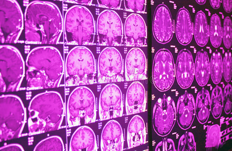 MRI of brain, MR. Magnetic Resonance of Brain, axial and coronal images, MR in purple stock photography